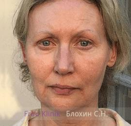 «На 10 лет моложе!» - уникальный реалити-проект RENTV и Frau Klinik 2