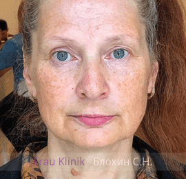 «На 10 лет моложе!» - уникальный реалити-проект RENTV и Frau Klinik 4