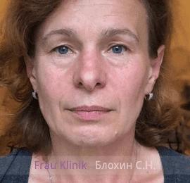 «На 10 лет моложе!» - уникальный реалити-проект RENTV и Frau Klinik 6