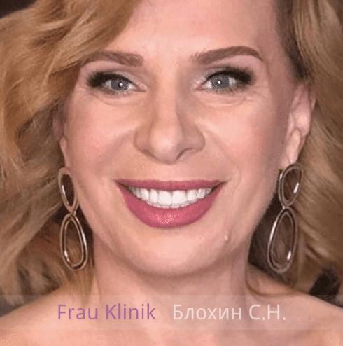 «На 10 лет моложе!» - уникальный реалити-проект RENTV и Frau Klinik 7