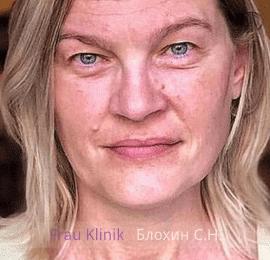 «На 10 лет моложе!» - уникальный реалити-проект RENTV и Frau Klinik 8