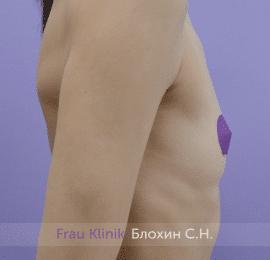 Увеличение имплантами 57