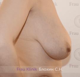 Уменьшение груди 39
