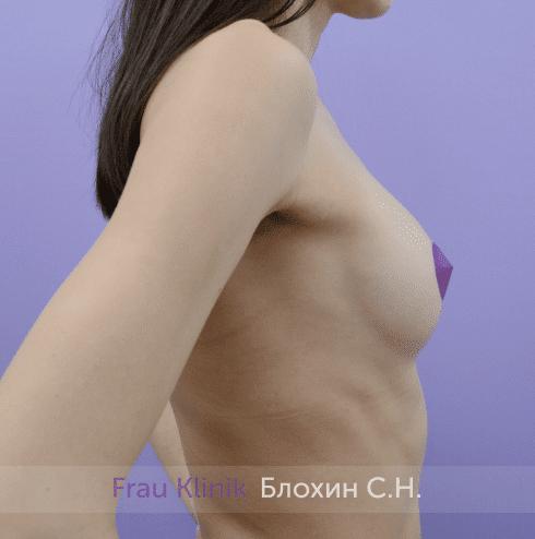 Увеличение имплантами 56