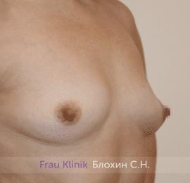 Увеличение груди 184