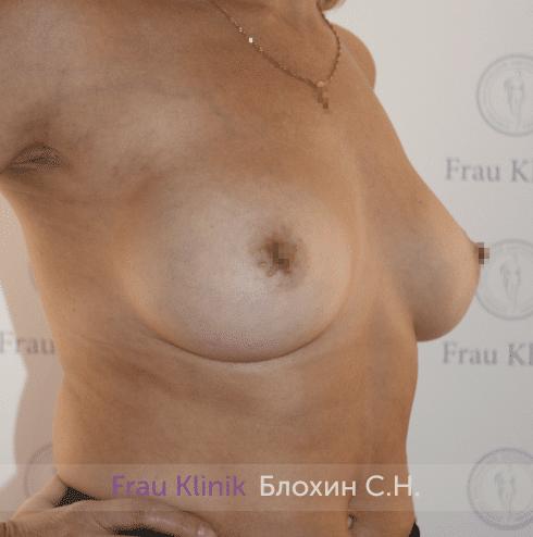Увеличение имплантами 36
