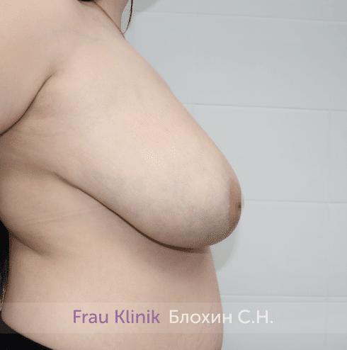 Уменьшение груди 60