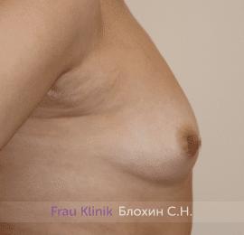 Увеличение груди 186