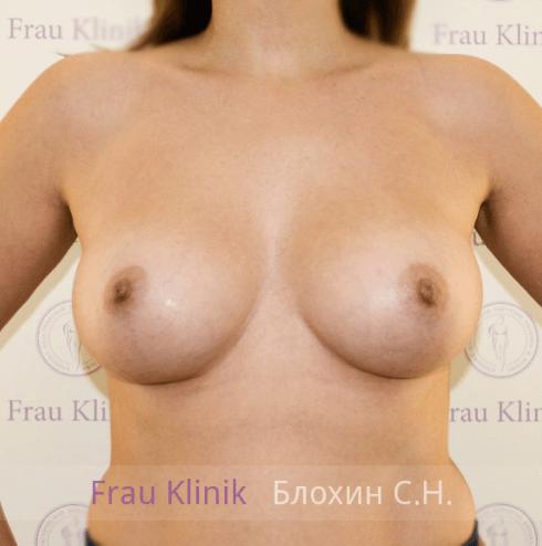 Увеличение груди 29