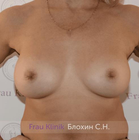 Увеличение имплантами 34