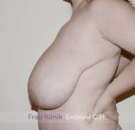 Уменьшение груди 51
