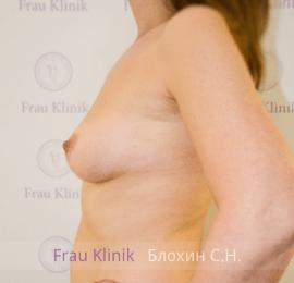 Увеличение груди 24