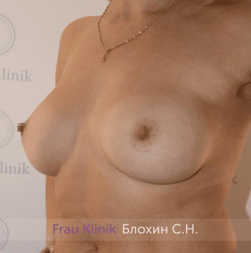 Увеличение груди 181