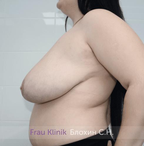 Уменьшение груди 52