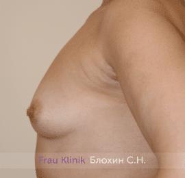 Увеличение имплантами 31