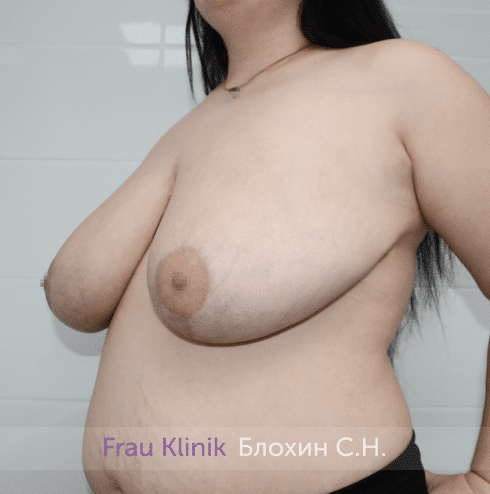 Уменьшение груди 54