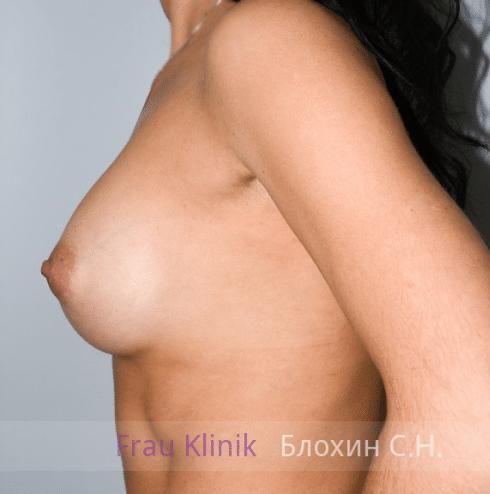 Увеличение груди 35