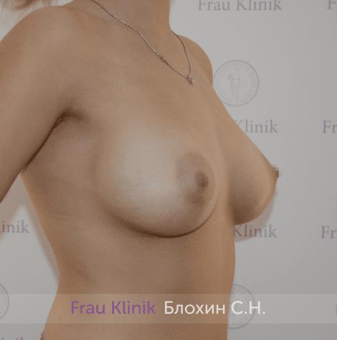 Увеличение груди 195