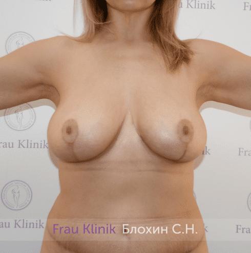 Уменьшение груди 62