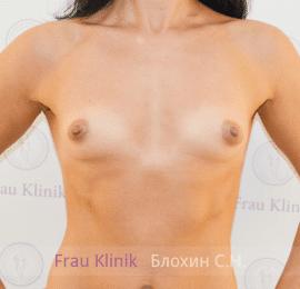 Увеличение груди 38