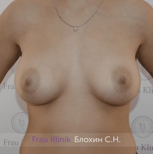 Увеличение имплантами 26