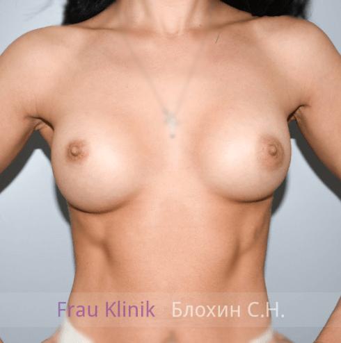 Увеличение груди 39