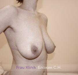 Уменьшение груди 69