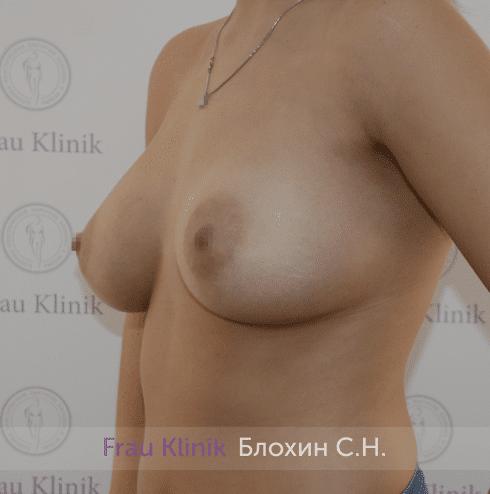 Увеличение имплантами 24