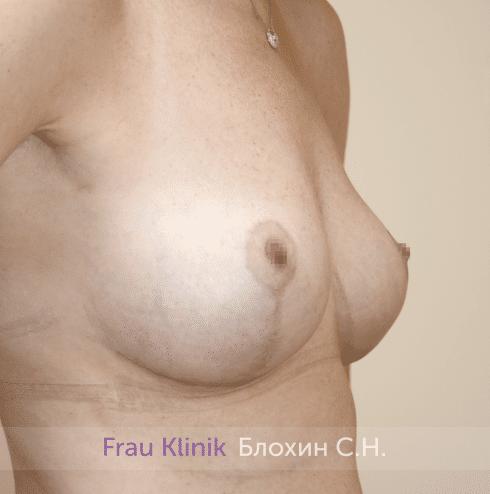 Уменьшение груди 70