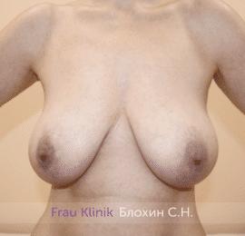 Уменьшение груди 67
