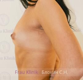 Увеличение груди 34