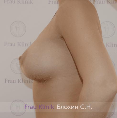 Увеличение имплантами 22