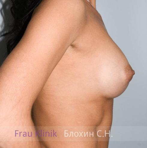 Увеличение груди 43