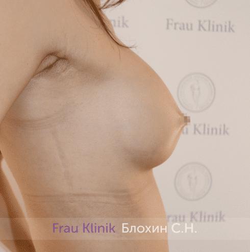 Увеличение груди 203