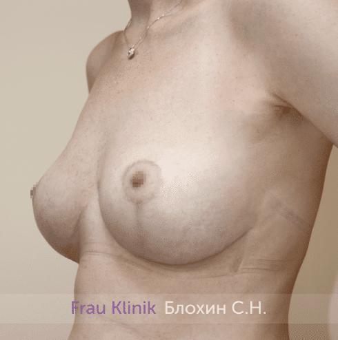 Уменьшение груди 66