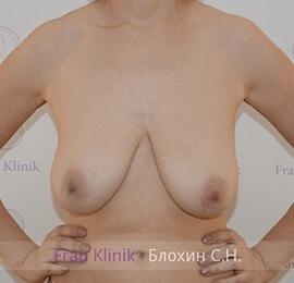 Уменьшение груди 9