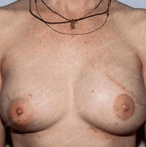 Реконструкция груди 16