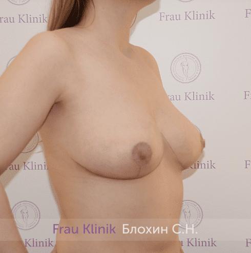 Уменьшение груди 38