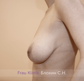 Уменьшение груди 63