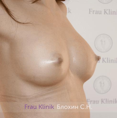 Увеличение имплантами 18