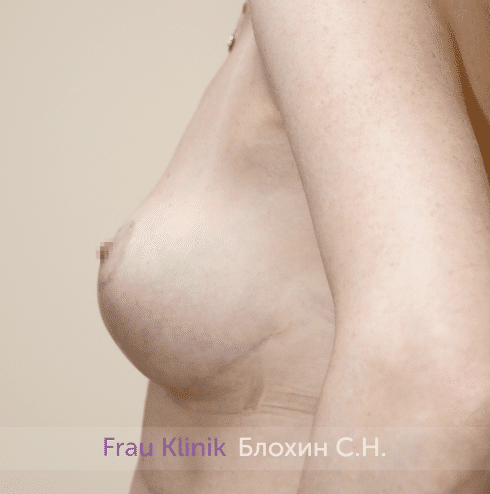 Уменьшение груди 64