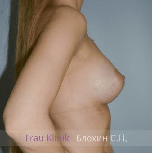 Увеличение груди 53