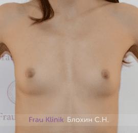 Увеличение имплантами 17