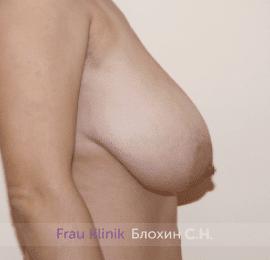 Уменьшение груди 81