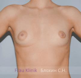 Увеличение груди 48