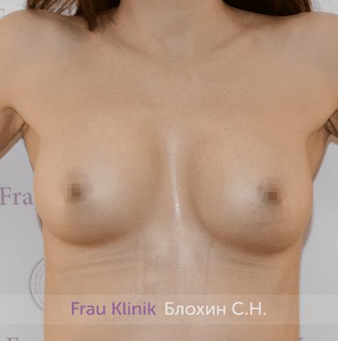 Увеличение имплантами 16