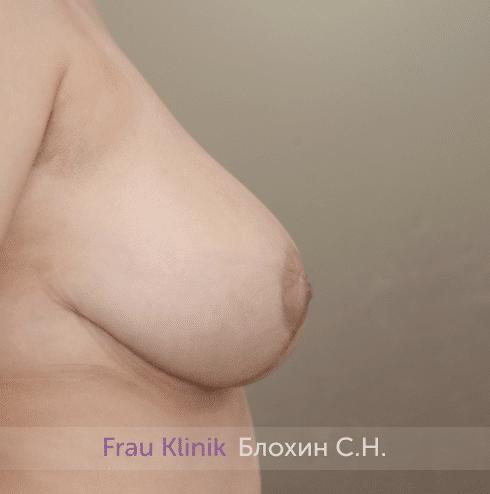 Уменьшение груди 82