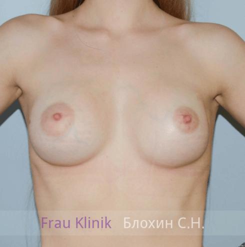 Увеличение груди 49