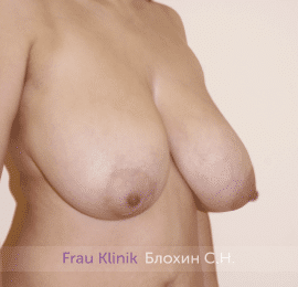 Уменьшение груди 79