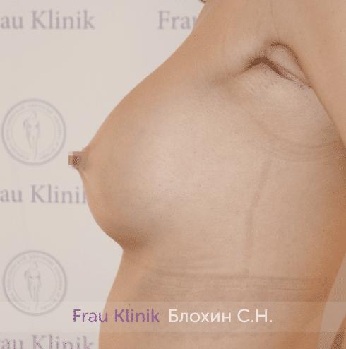 Увеличение имплантами 14
